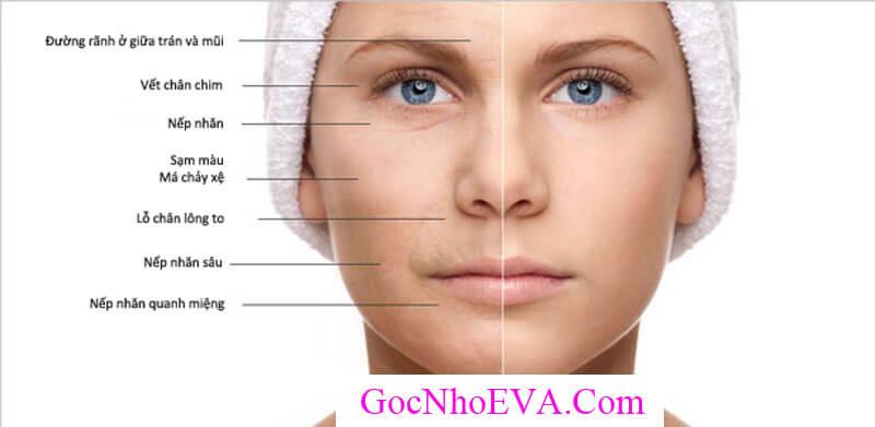 Cách nhận biết da mặt bị lão hóa sớm