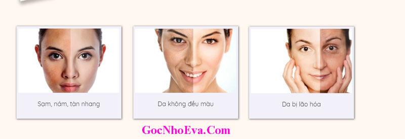 Vấn đề về làn da mà phụ nữ Việt đang gặp phải