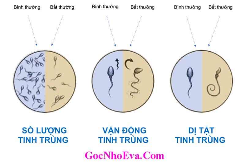 Các loại tinh trùng của nam giới
