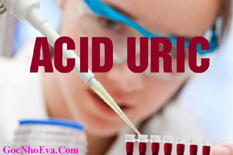 Acid Uric là gì? Chỉ số này Cao nói lên điều gì?