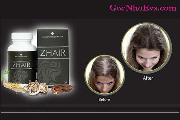 Viên uống Zhair sản phẩm giúp mọc tóc nhanh chóng
